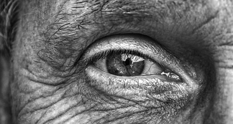 Arrugas de la pata de gallo: mitos y realidades sobre el tratamiento con toxina botulínica